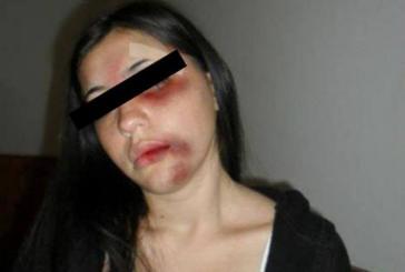 ROCA – Una Joven es BRUTALMENTE GOLPEADA y acusan a su EX NOVIO